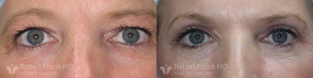 Blepharoplasty Hobart Patient 2-1