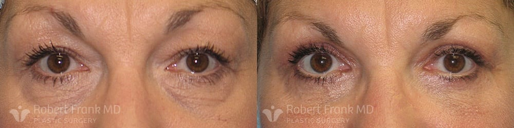 Blepharoplasty Munster Patient 1-1
