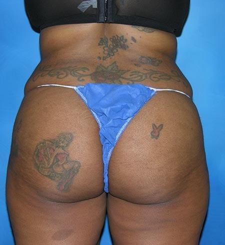Brazilian Butt Lift Munster Patient 2.1
