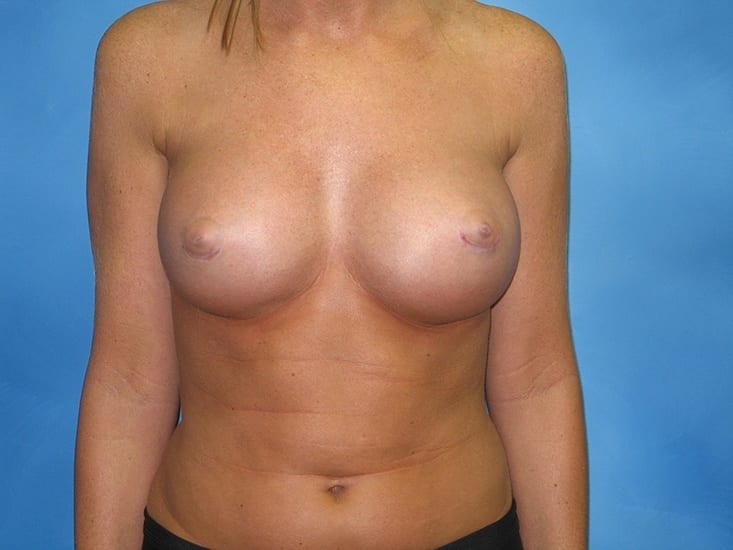 Breast Augmentation Hobart Patient 1.1