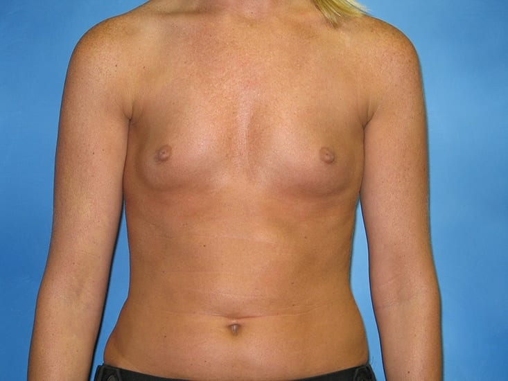 Breast Augmentation Hobart Patient 1