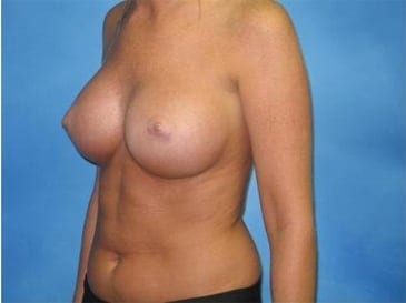 Breast Augmentation Hobart Patient 2.1