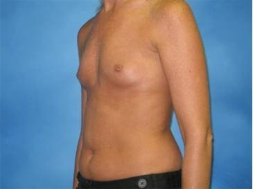 Breast Augmentation Hobart Patient 2