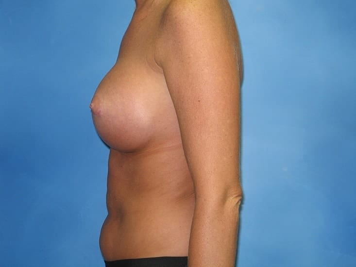 Breast Augmentation Hobart Patient 3.1