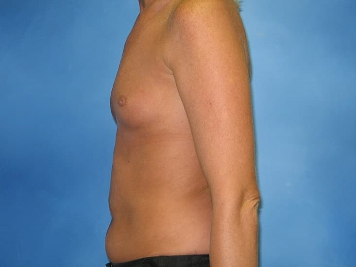 Breast Augmentation Hobart Patient 3