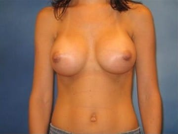 Breast Augmentation Hobart Patient 4.1