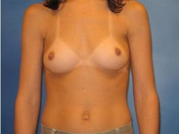 Breast Augmentation Hobart Patient 4