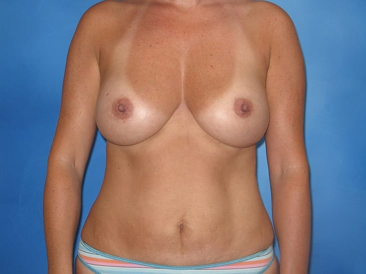 Breast Augmentation Hobart Patient 5.1