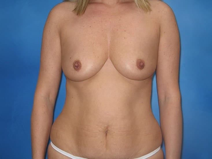 Breast Augmentation Hobart Patient 5