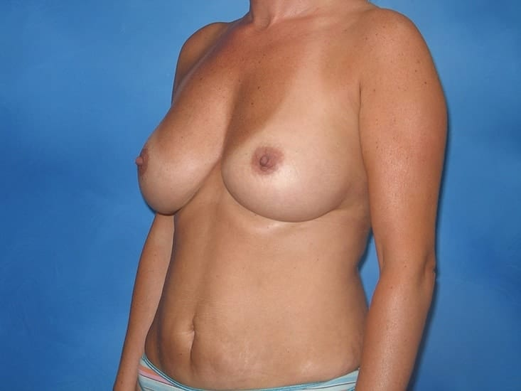 Breast Augmentation Hobart Patient 6.1