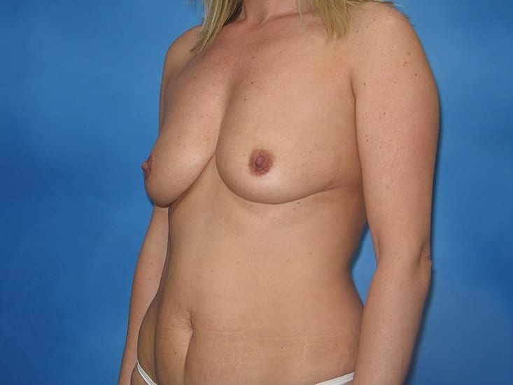Breast Augmentation Hobart Patient 6