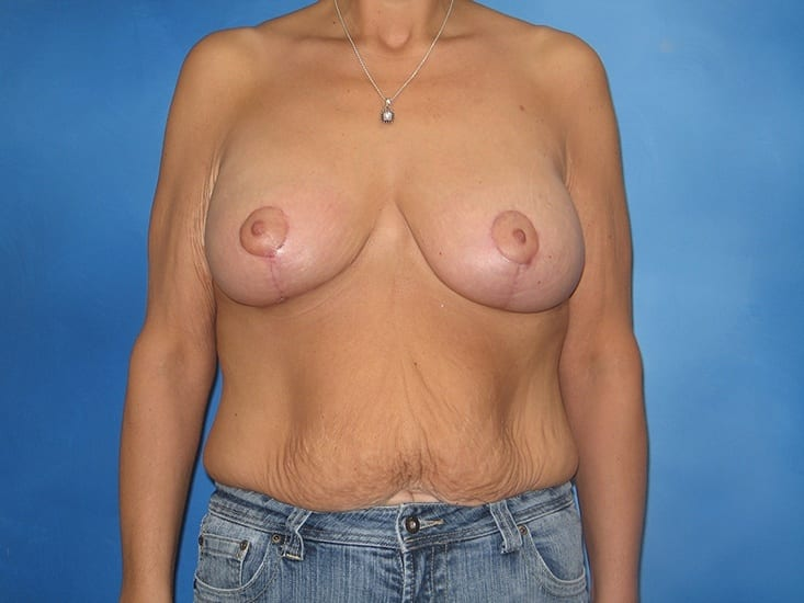 Breast Augmentation Lake County Patient 1.1