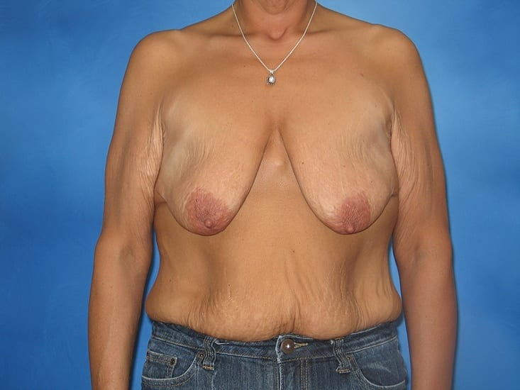Breast Augmentation Lake County Patient 1