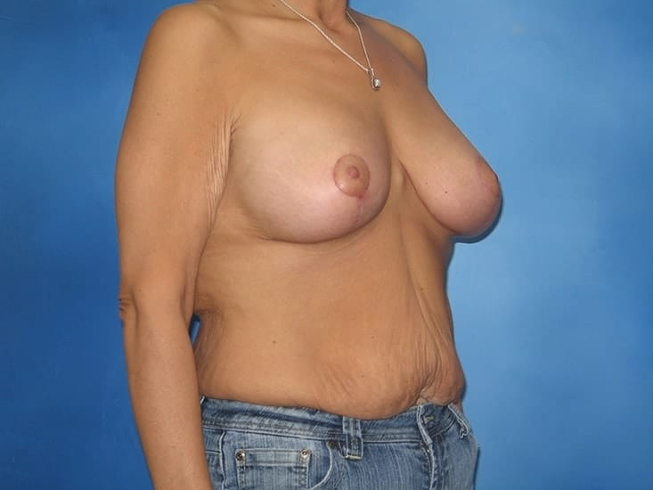 Breast Augmentation Lake County Patient 2.1