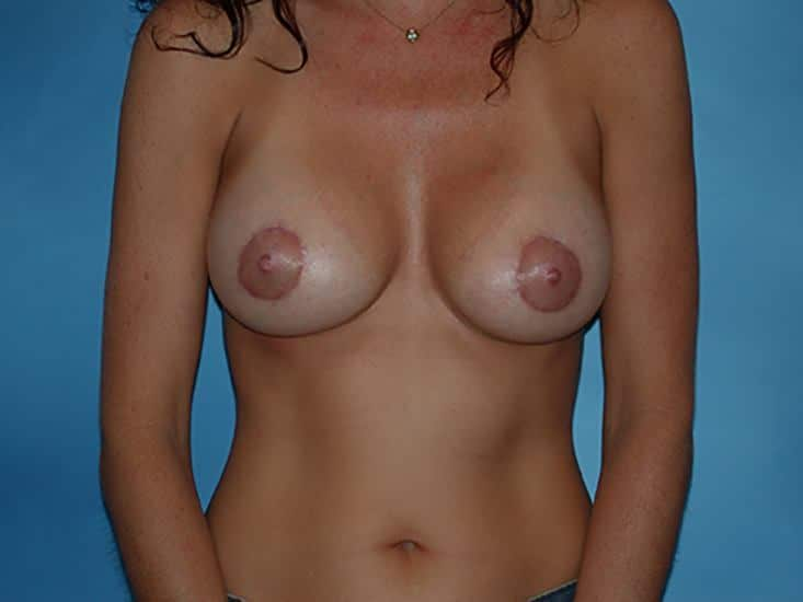 Breast Augmentation Lake County Patient 4.1