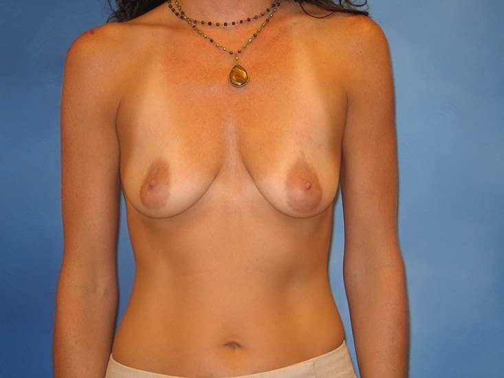 Breast Augmentation Lake County Patient 4