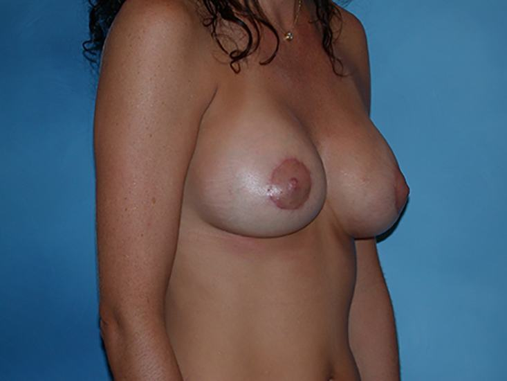 Breast Augmentation Lake County Patient 5.1