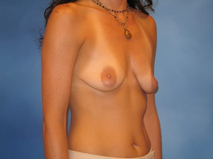 Breast Augmentation Lake County Patient 5