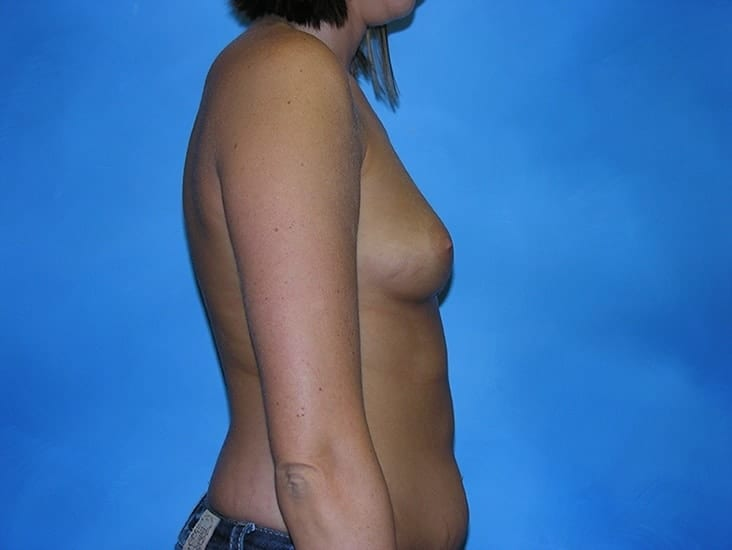 Breast Augmentation Munster Patient 1