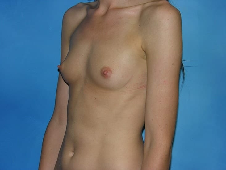 Breast Augmentation Munster Patient 2