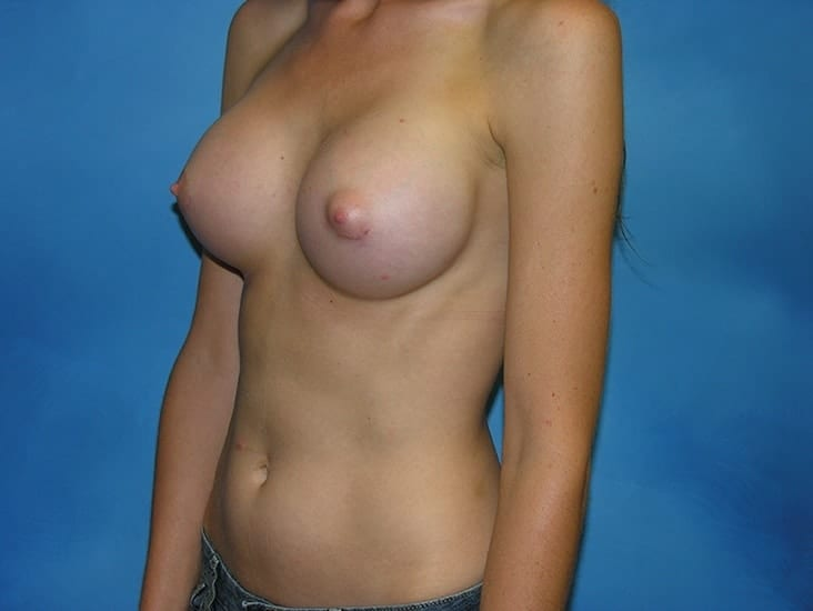 Breast Augmentation Munster Patient 2.1