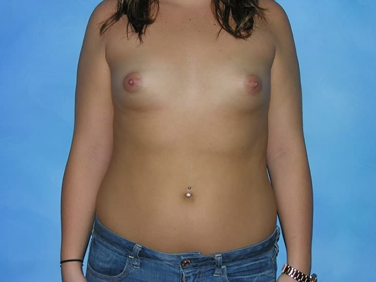 Breast Augmentation Munster Patient 4