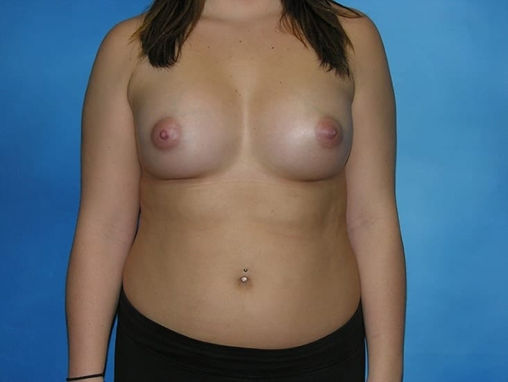 Breast Augmentation Munster Patient 4.1