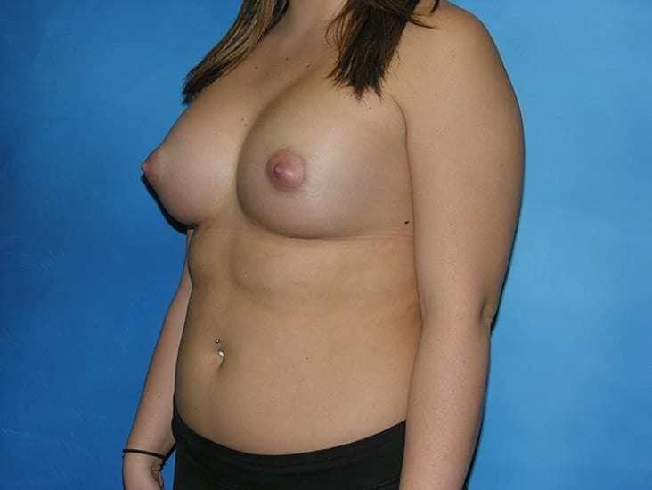 Breast Augmentation Munster Patient 5.1