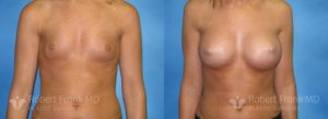 Breast Augmentation Hobart_1-1