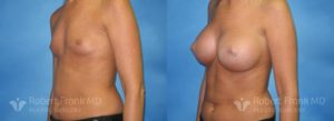 Breast Augmentation Hobart_1-2