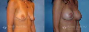 Breast Augmentation Hobart 11-2