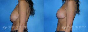 Breast Augmentation Hobart 12-3