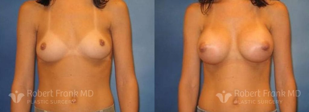 Breast Augmentation Hobart 13-1
