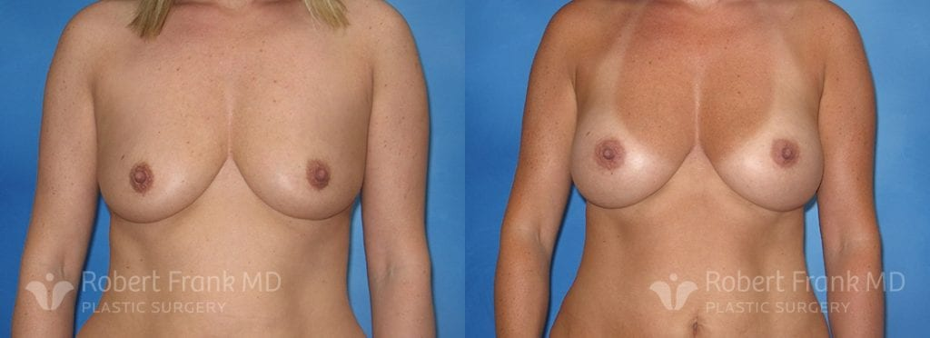 Breast Augmentation Hobart_2-1