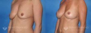 Breast Augmentation Hobart 2-2