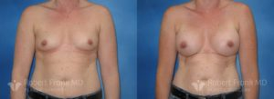 Breast Augmentation Hobart 3-1