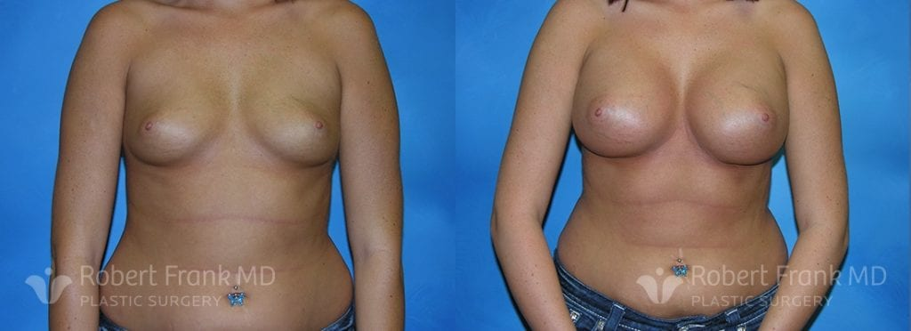 Breast Augmentation Hobart 4-1