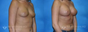 Breast Augmentation Hobart 4-2