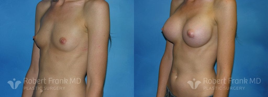 Breast Augmentation Hobart 5-1