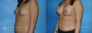 Breast Augmentation Hobart 6-2