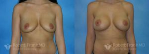 Breast Augmentation Hobart 7-1