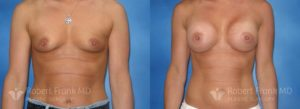 Breast Augmentation Hobart 8-1