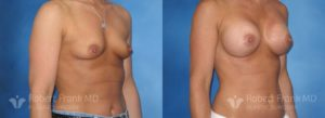 Breast Augmentation Hobart 8-2