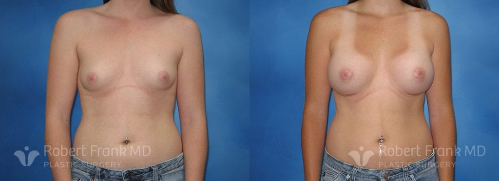 Breast Augmentation Hobart 9-1