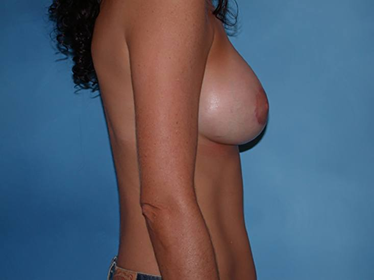 Breast Enhancement Hobart Patient 1.1