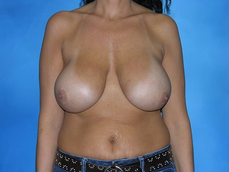 Breast Enhancement Hobart Patient 2