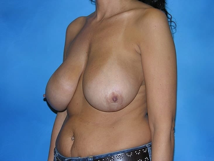 Breast Enhancement Hobart Patient 3