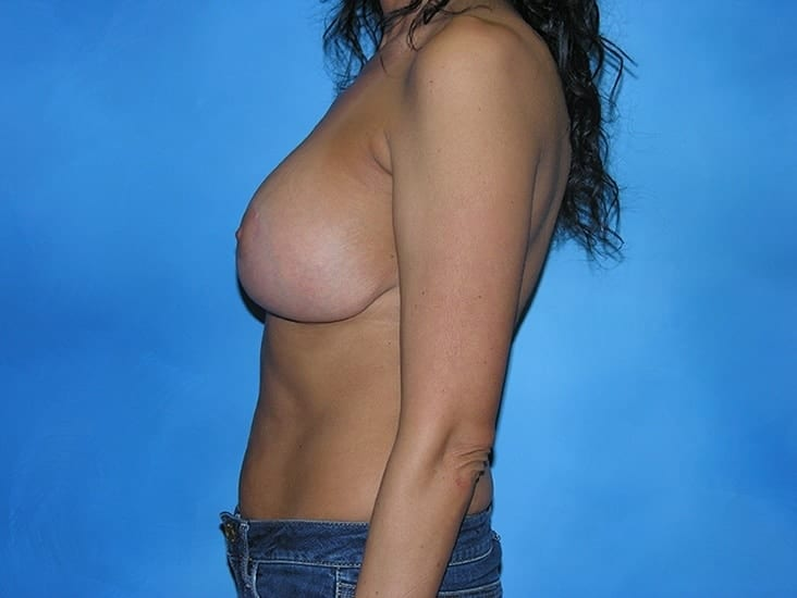 Breast Enhancement Hobart Patient 4.1