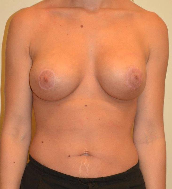 Breast Enhancement Hobart Patient 5.1