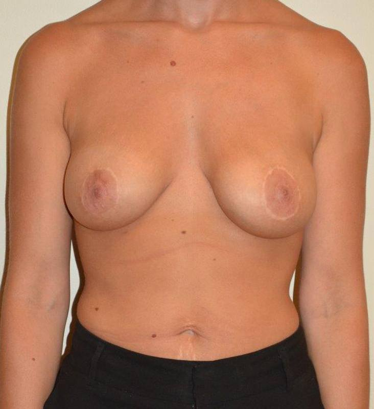 Breast Enhancement Hobart Patient 5